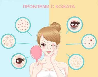 Проблеми с кожата